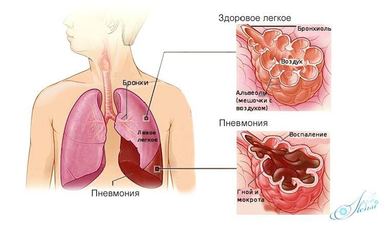 легкое человека при пневмонии