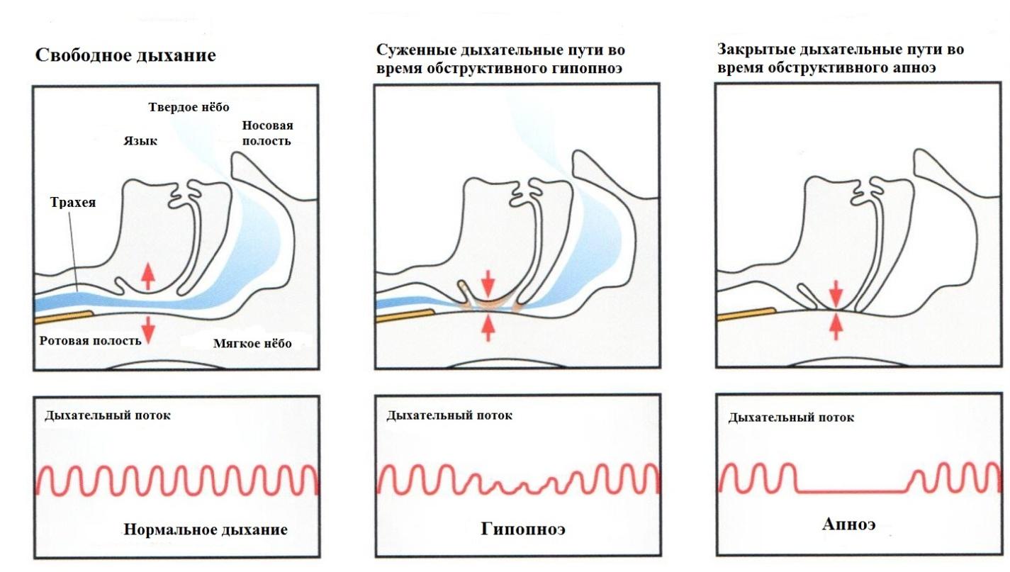 Схематичное изображение апное, гипопноэ и нормального дыхания