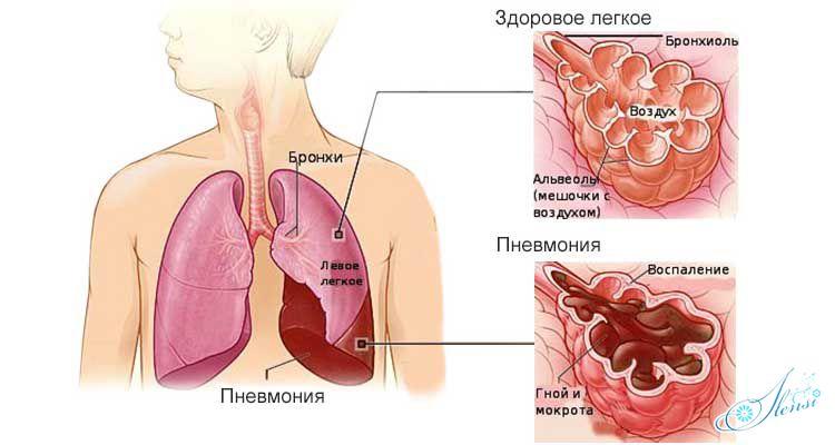 пневмония легких и здоровое легкое
