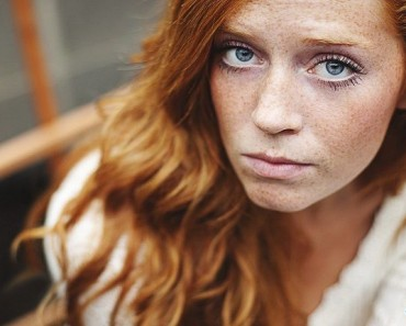 девушка с пигментными пятенами на лице