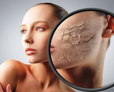 девушка с сухой кожей лица